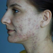 Hautmilben bie Akne